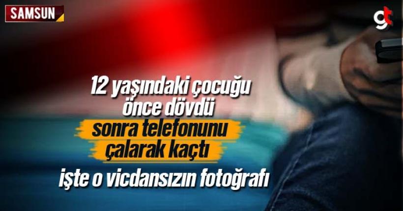 12 Yaşındaki Çocuğu Döverek Elindeki Telefonu Çalarak Kaçtı