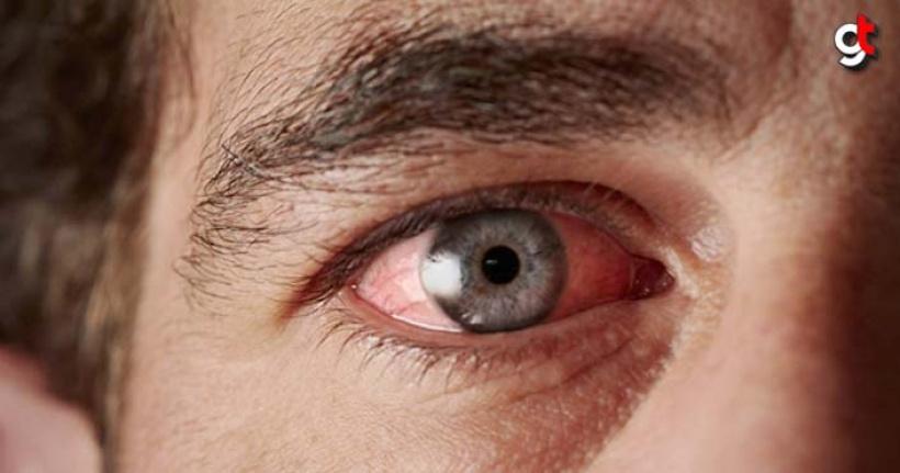 Göz Kuruluğu tedavisi için neler yapılmalı?