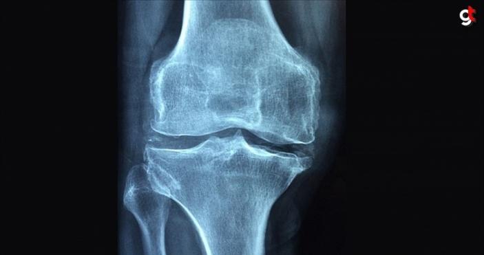 Romatizmal hastalıklar 'osteoporoz' riskini artırıyor