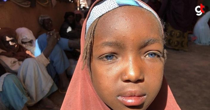 Nijerli mavi gözlü Rukiye ilaç bulamazsa 6 ay sonra kör olabilir