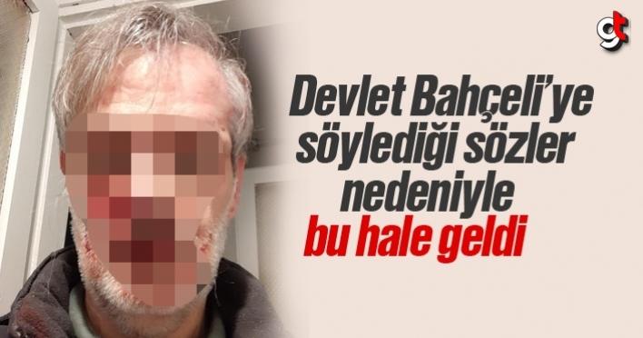 Devlet Bahçeli'ye hakaretlerde bulunduğu iddiasıyla İsrafil Kumbasar darp edildi