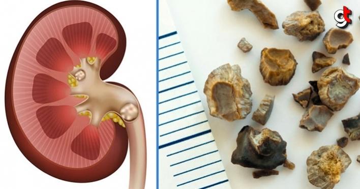 Taş hastalığı nedir, teşhisi ve tedavisi nasıldır?