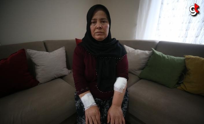 Düzce'de pitbull saldırısında yaralanan kadın yaşadıklarını unutamıyor