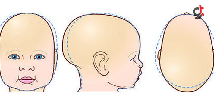 Bebeğinizin Kafasında Şekil Bozukluğu Varsa Mutlaka Okuyun!