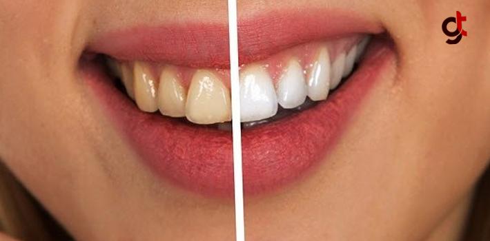 Diş Beyazlatmak İçin Bitkisel Çözümler