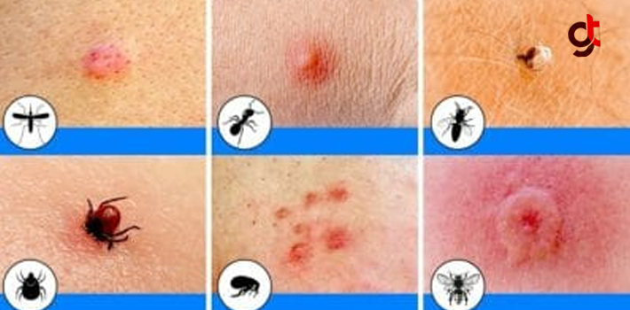 Hangi Böcek Tarafından Isırıldığınızı Bilmiyor Musunuz? İşte 10 Böceğin Farklı Isırıkları