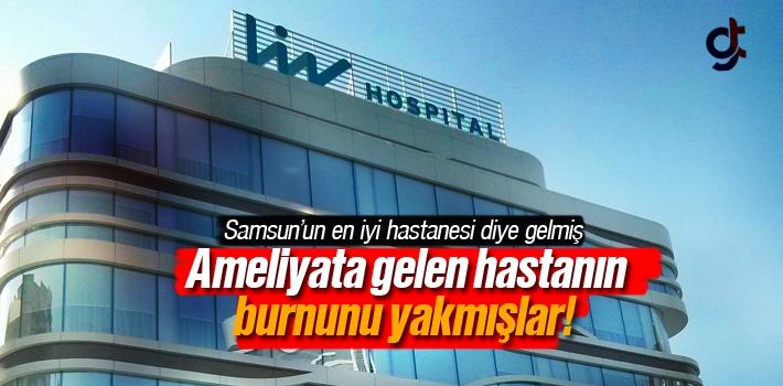 Samsun Liv Hospital Hastanesinde Hastanın Burnunu Yakmışlar