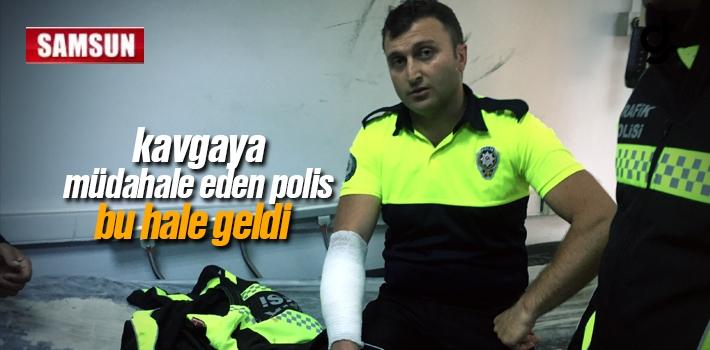 Samsun'da Kavgaya Müdahale Eden Polis Bu Hale Geldi