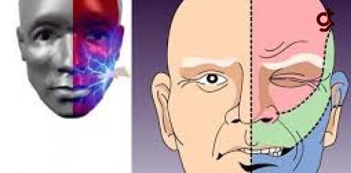 Şiddetli Yüz Ağrılarından Ganglion Sinir Blokajı İle Kurtulabilirsiniz!