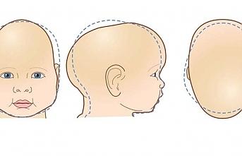 Bebeğin kafasında şekil bozukluğu varsa dikkat...