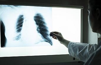 Akciğer hastalıkları koronavirüsün daha ciddi...