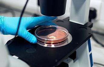 Erciyes Üniversitesinde araştırmacılar, koronavirüsü hücre kültüründe izole etmeyi başardı