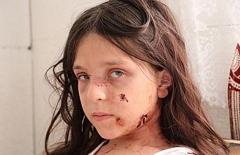 Samsun'da pitbull saldırısına uğrayan çocuk yaralandı