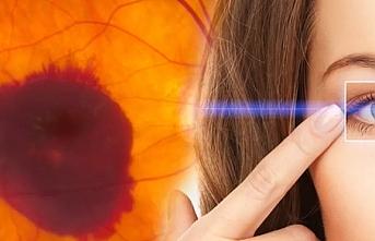 Sarı nokta hastalığı nedir, tedavisi nasıl yapılır?