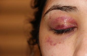 Karabük'te bir kadın kendisini darbettiği iddiasıyla avukat erkek arkadaşından şikayetçi oldu