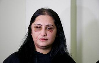 Samsun'da eski eşi tarafından darbedilen kadın açıklamalarda bulundu: