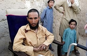 Pakistan'daki sığınmacılar 40 yıldır yaşamlarını...