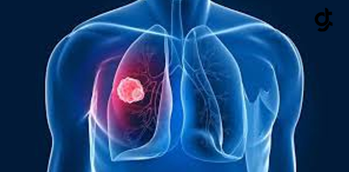 Akciğer Kanserinden Korunmanın 6 Yolu