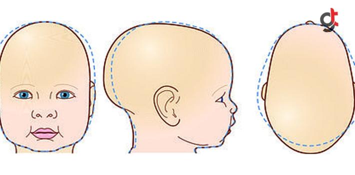 Bebeğinizin Kafasında Şekil Bozukluğu Varsa Mutlaka...