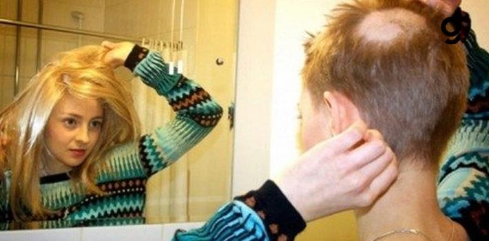 Saç, Sakal Ve Kaş Koparmak Bir Hastalık!