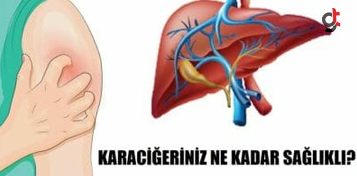 Vücudunuz Sizi Önceden Uyarıyor – İşte Sağlıksız Bir Karaciğere Sahip Olduğunuzun 5 Belirtisi